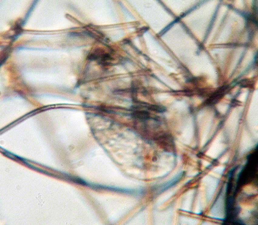 Ciliate among filaments of Cyanobacterial filaments