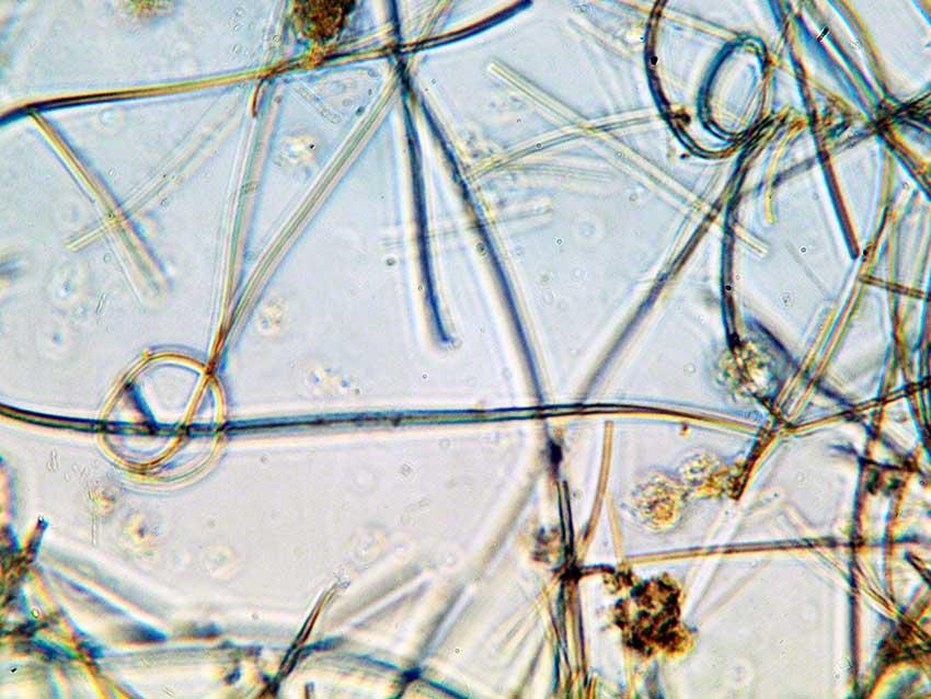 Cyanobacterial filaments